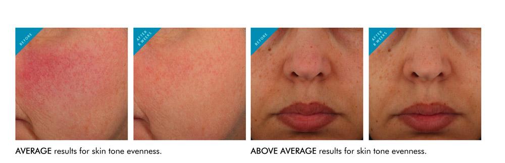 Glycolic 10 Renew Overnight von Skinceuticals gibt effektiv 10 Prozent Glycolsäure ab und sorgt damit für eine nachweislich verbesserte Ausstrahlung.